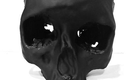 Druk 3D w medycynie. Wydruk 3D czaszki pacjenta po wypadku