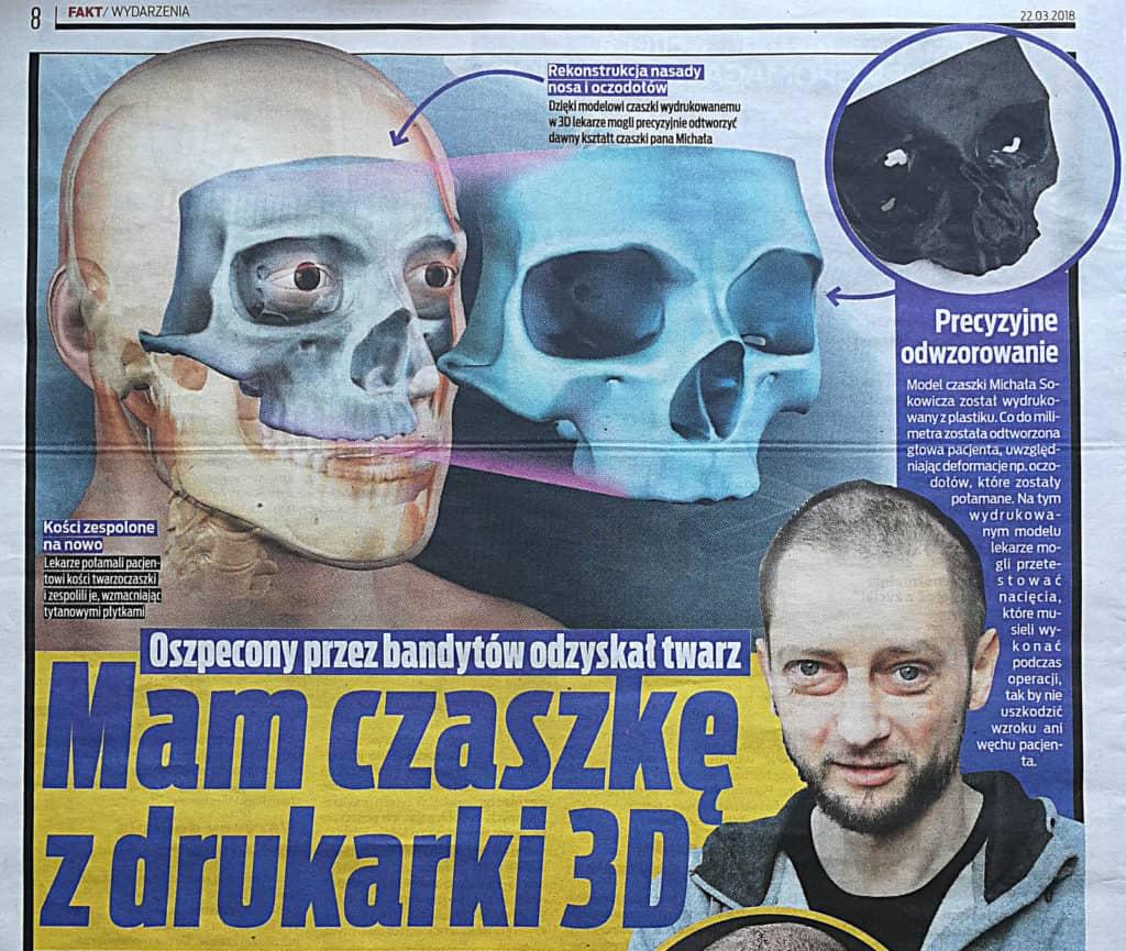 druk 3d czaszki i kości pod operację chirurgiczną