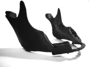 Druk 3D żuchwy pacjenta z wstawioną płytką